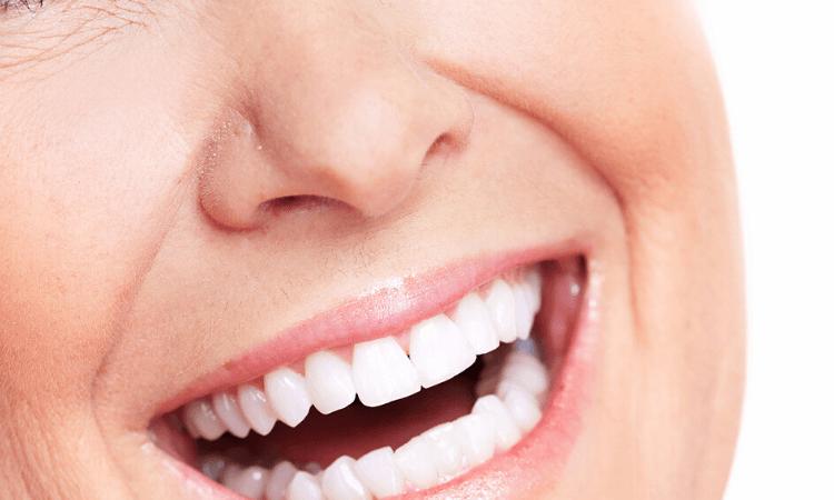 implants-dentaires refaire-son-appareil-dentaire