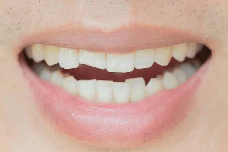 remplacer-une-dent-de-devant